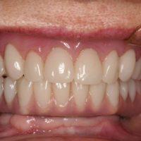 Full Denture After